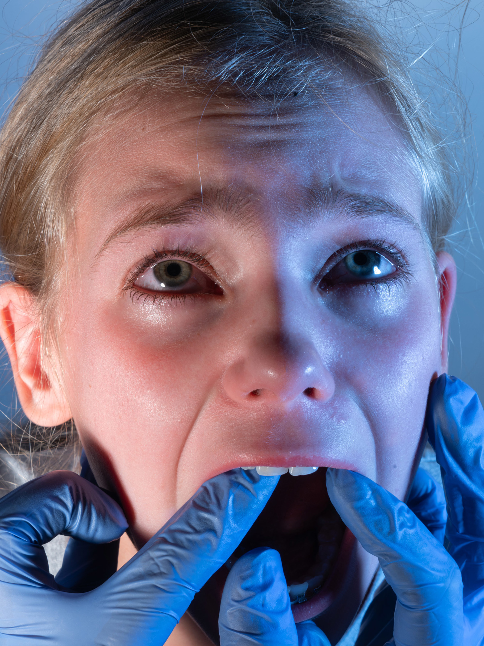 A woman's mouth is hled open by hands dressed in blue latex gloves.